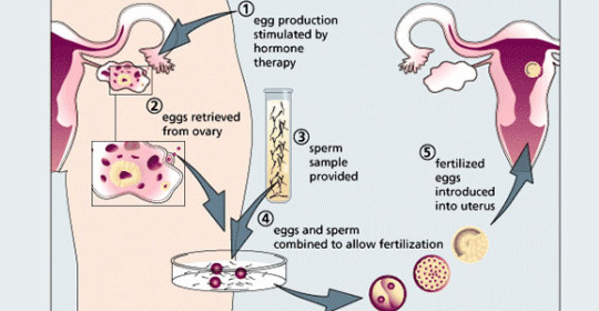 embryo with IVF