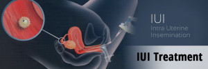 IUI Treatment Delhi how much does cost of intrauterine insemination 300x100 - IUI Treatment Delhi how much does cost of intrauterine insemination