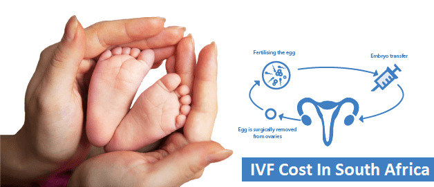 IVF Cost in South Africa 2019